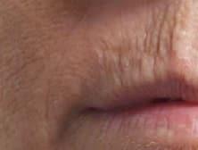 Minder Rimpels probeer Blue Mountain Skin Care