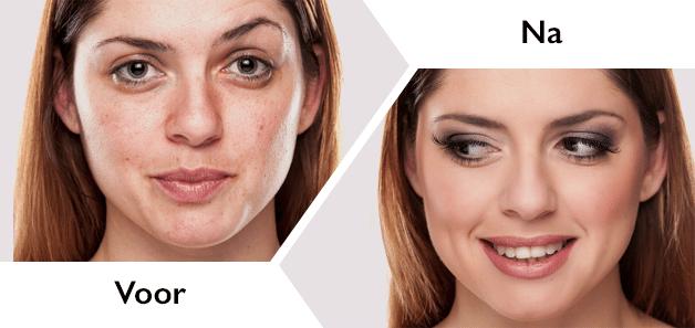 Probeer gratis de Shimendu formule! Dit product zorgt voor een jongere en gezonde uitstraling! Betaal alleen €6.95 verzendkosten. bekijk het verschil van de 2 dames!