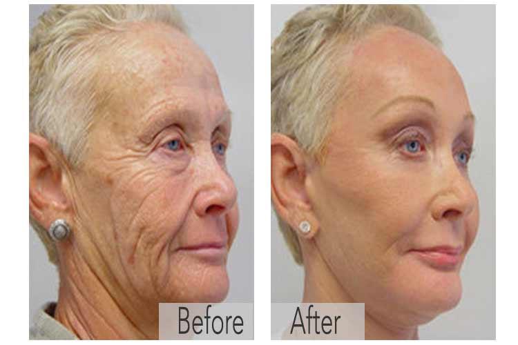 Milou Skincare voor 65% minder rimpels! Voel je jonger!