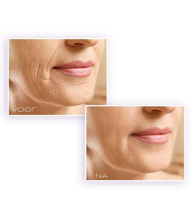 Mardanti skincare vertraagt rimpels en zorgt voor eengezonde huid. De bewezen formule om uw huid te laten verjongen! Ga er jonger uitzien en probeer deze unieke formule.