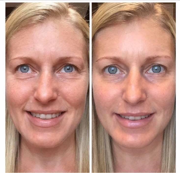 Vermindert rimpels en verbetert de huid