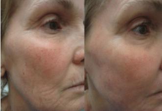 Skin Care vermindert rimpels en verbetert de huid