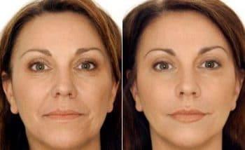 24K Gold Skin Care vermindert rimpels en verbetert de huid